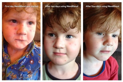mendblend-used-on-chicken-pox